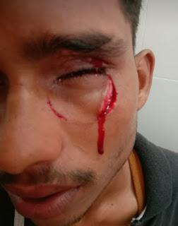 मोहर्रम के जुलूस में प्रदर्शन के दौरान युवक की आंख में घुसे कांच इंदौर रेफर