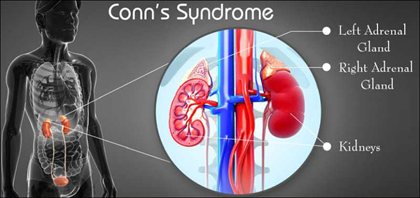 Conn's Syndrome