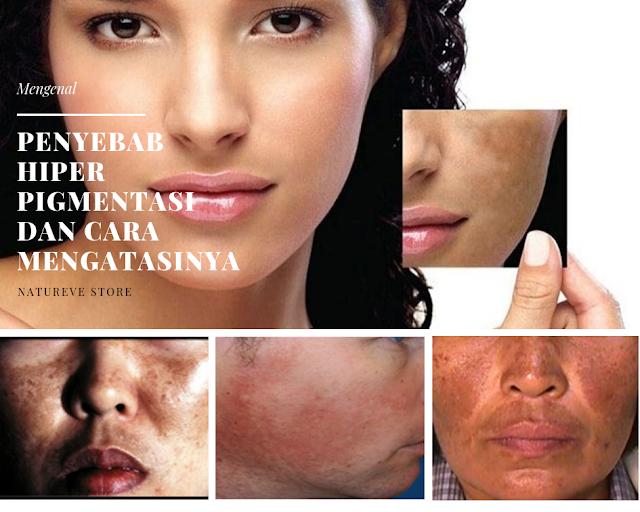 Mengenal Penyebab Hiperpigmentasi dan Cara Mengatasinya
