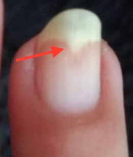 fingernagel riecht komisch, Fingernagel krankheiten erkennen Bilder Fingernagelpilz
