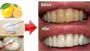 How to Whiten Teeth With Baking Soda?