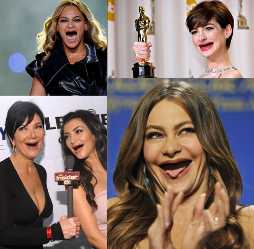 Funny Toothless Celebrities Pictures Images