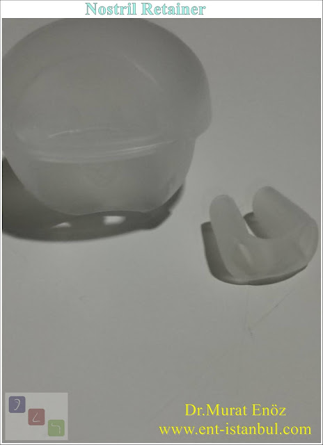 Nostril Retainer,Nose Shaping Apparatus
