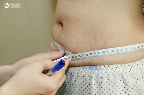 Rúng động làm giảm mỡ không cần giảm cân