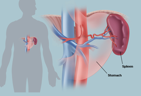 Cancer of the Spleen, Very Rare Cancer