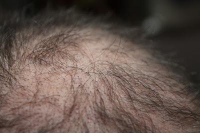 Cara Mengatasi Rambut Rontok terampuh