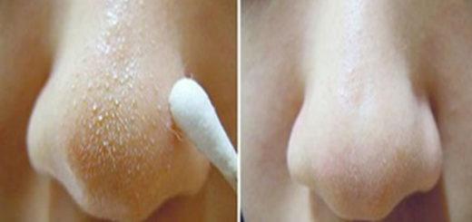 Cum sa scapi de punctele negre de pe nas si de pe fata – secretul indian