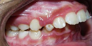 skip phase I orthdontics
