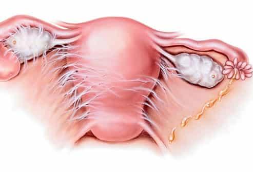 اعراض واسباب مرض التهاب الحوض