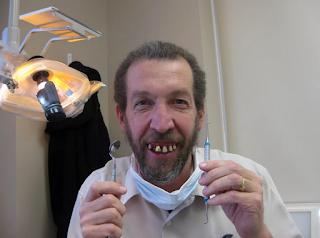 Лечение зубов в Австрии