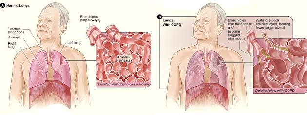 diagnosed sleep apnea were given the PAP therapy. It was recognized the reduction in the number of visits of patients who were given PAP therapy, which demonstrated that the COPD exacerbation patients if diagnosed and treated their OSA in earlier stage then there number of hospital visits may reduce.