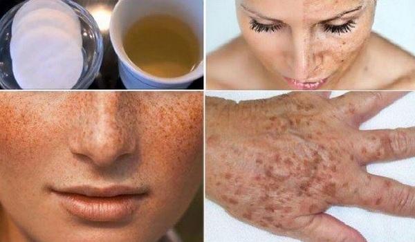 التخلص من البقع البنية في الوجه والجسم بعلاجات طبيعية مختلفة وفعالة جداً | ملكة العرب