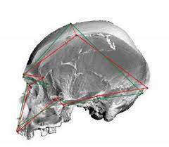 Photo of a skull.