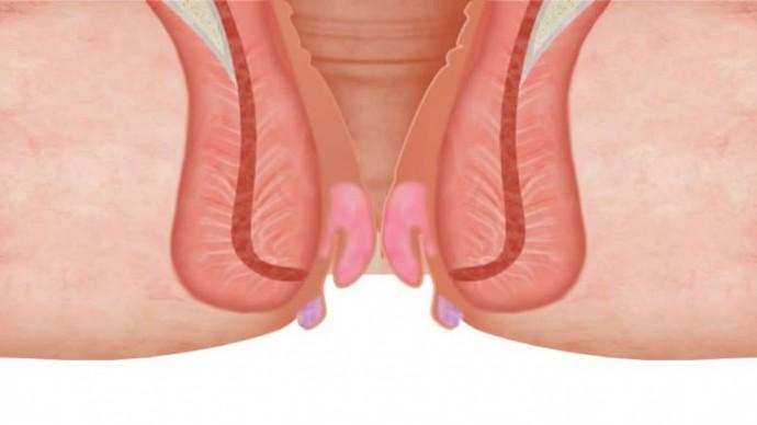 prostat ilaci isimleri flomax