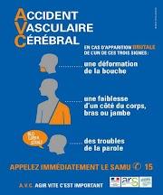 Santé : accident vasculaire cérébral, symptômes, traitement