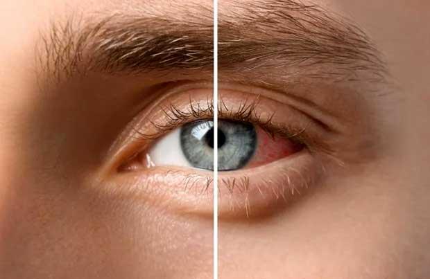 ilustrasi sakit mata