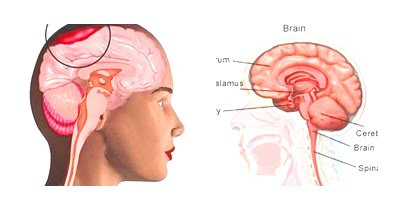 Brain Abscess,  Symptoms of brain abscess, Causes of brain abscess.