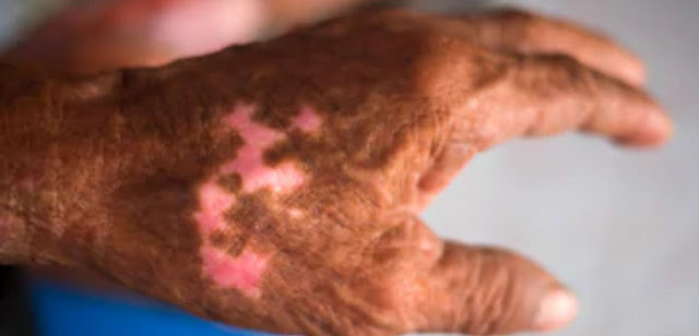 Know what is leprosy, its causes, symptoms, treatment and prevention