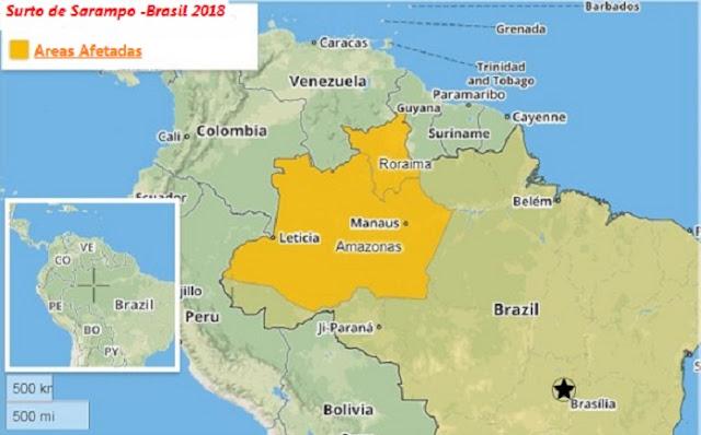 Surto de Sarampo - Áreas afetadas no Brasil