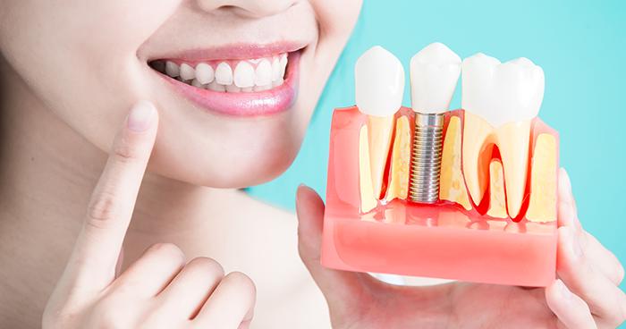 Implante dentário pode afetar diretamente na qualidade de vida, explica especialista