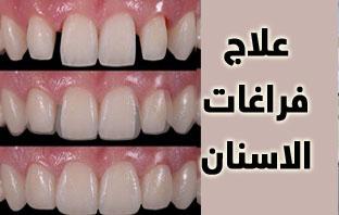 تكلفة علاج الفراغات بين الاسنان