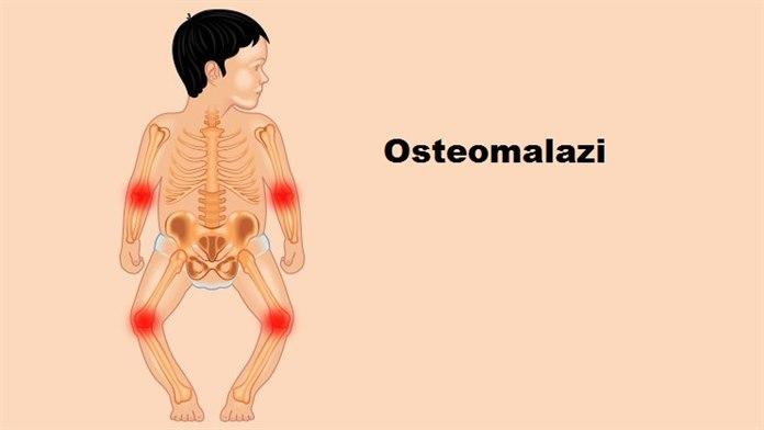 Osteomalazi Sebebi, belirtileri, tedavisi