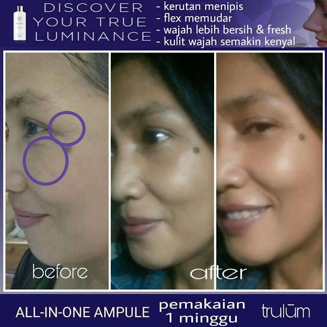 Makin Cantik atau Ganteng Tanpa Harus Ke Dokter Kecantikan di Pesawaran Lampung