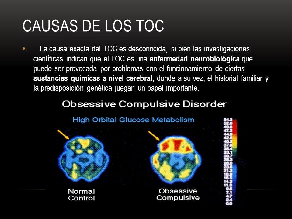 Trastorno obsesivo compulsivo causas tratamiento