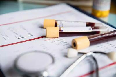 نظام غذائي إيجابي وسلبي لفصيلة الدم