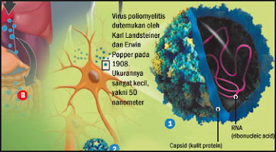 http://www.pusatmedik.org/2016/12/polio-definisi-gejala-penyebab-dan-perawatan-serta-pencegahan-penyakit-polio-menurut-ilmu-kedokteran.html