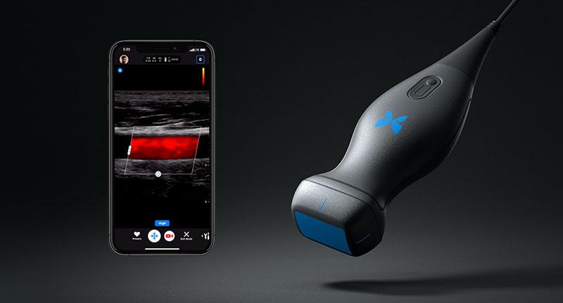 УЗИ в смартфоне  | Лучшие изобретения 2019 на Стартап Ньюс
