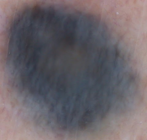 how to remove blue moles
