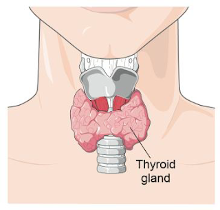 Hypothyroidism is a kind of thyroid disease