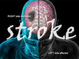 Cara Mengatasi Stroke secara Alami