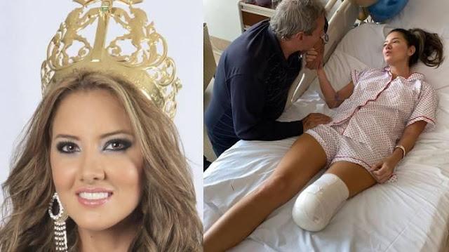 ANGIS PILU Miss Universe Kolombia Daniella Alvares Kakinya Diamputasi, Berawal dari Benjol Perut