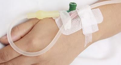 Komplikasi Terapi Intravena Infus