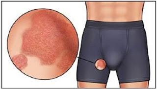obat gatal buah zakar alami yang ampuh