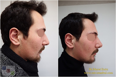 Natural Rhinoplasty in Men Istanbul
