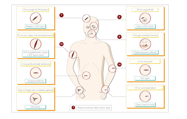 Wounds, Analgesia, Close the wound, Glue, adhesive strips, staples, dressings, Tetanus, antibiotic prophylaxis