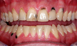 Sâu răng có nguy hiểm không?