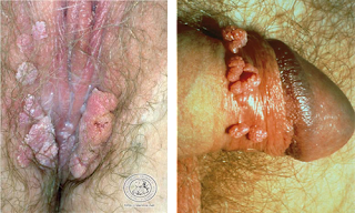 cara mengobati kutil kelamin tanpa operasi