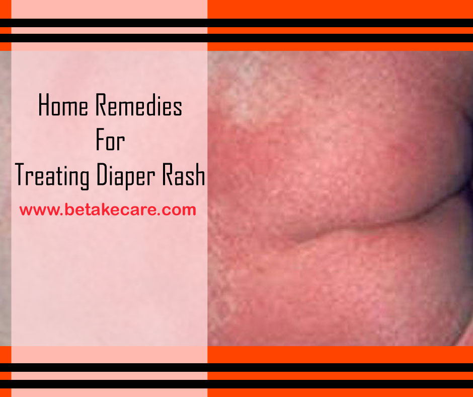 Home Remedies For Treating Diaper Rash