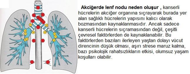 Akciğer Lenf Nodu