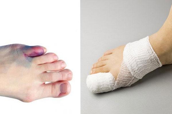 علاج كسر إصبع القدم الأعراض والأسباب