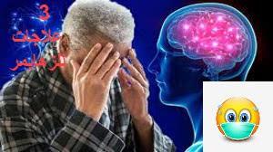 علاج الزهايمر