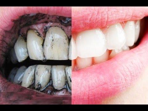 الكل يسأل : ما هي الوصفة السحرية لعلاج اصفرار الأسنان !!! الجواب هنا