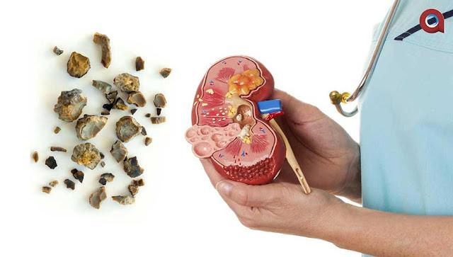Obat herbal gagal ginjal Ampuh