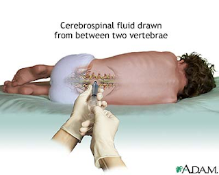 CSF is a sterile fluid and does not contain any commensals