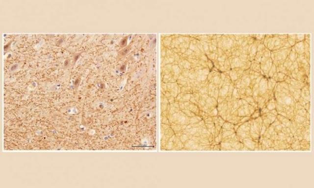 Εκπληκτικές ομοιότητες μεταξύ του ανθρώπινου εγκέφαλου και του Σύμπαντος