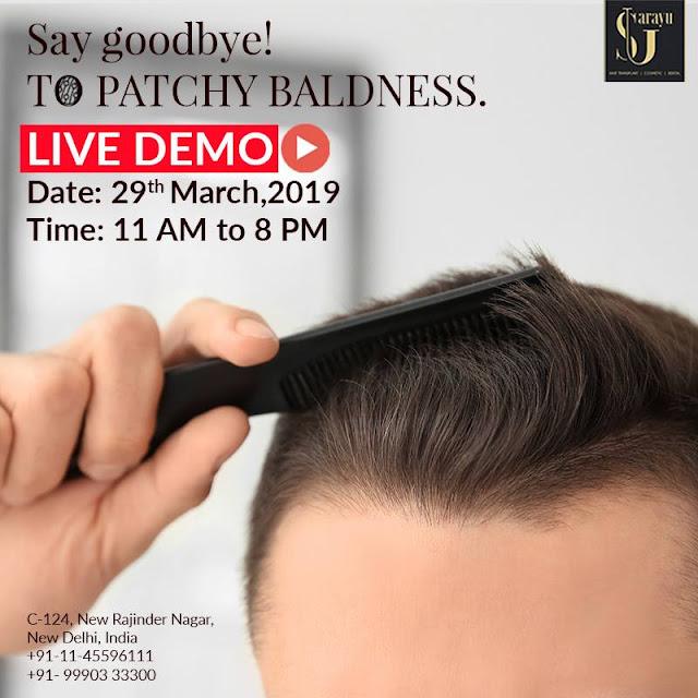 best hair transplant clinic in patel nagar, rajendra nagar, west delhi, delhi, india